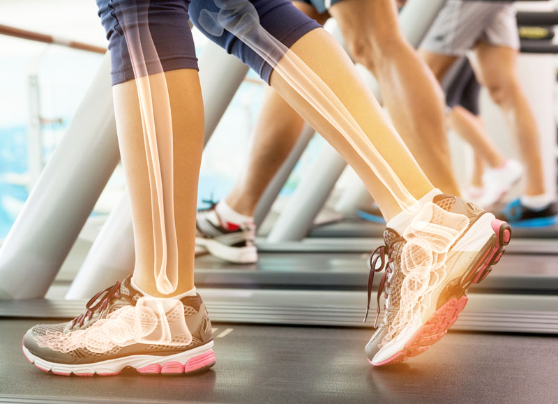 Image of a person on a treadmill with an an skeletal image super imposed